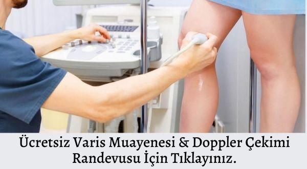 İdea Klinik Ankara Ücretsiz Varis Muayenesi